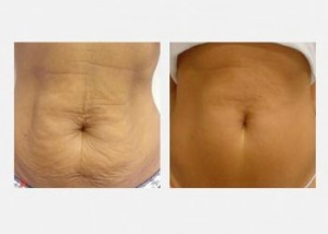 Female stomach fat reduction before and after