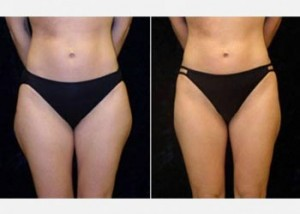 Female thigh fat reduction before and after