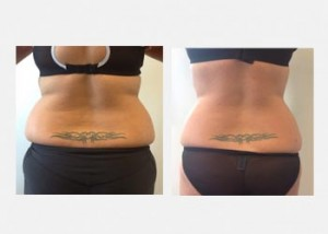 Female waist fat reduction before and after